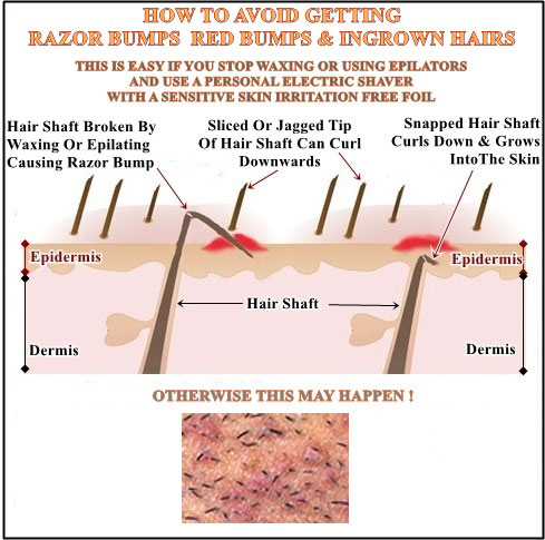Avoid shaver rash red bumps and ingrown hairs by using a sensitive skin personal shaver