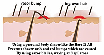 Ingrown-hairs-shaver-rash-red-bumps-are-caused-by-razor-blades-and-waxing